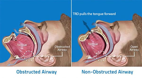 How Tongue Retaining Device works