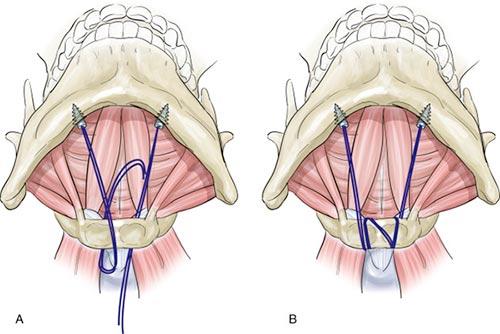 Hyoid Suspension