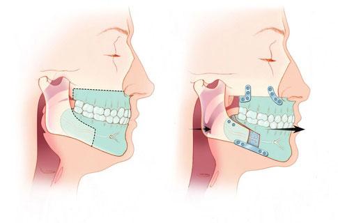 Maxillomandibular Advancement
