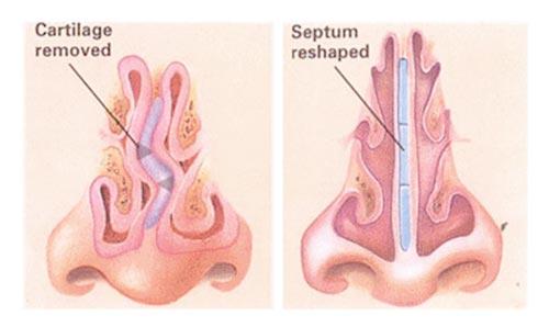 Septoplasty and Turbinate Reduction
